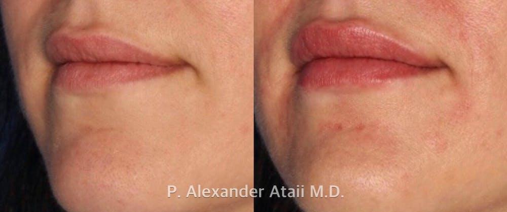 Lip Augmentation Gallery - Patient 24560981 - Image 3