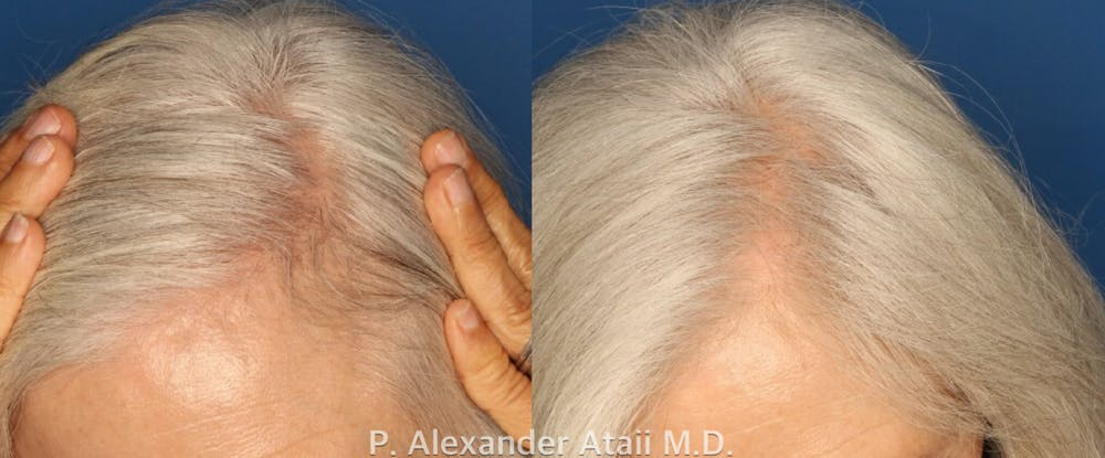 PRP Hair Loss Gallery - Patient 24560985 - Image 1