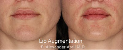Lip Augmentation Gallery - Patient 24560984 - Image 1