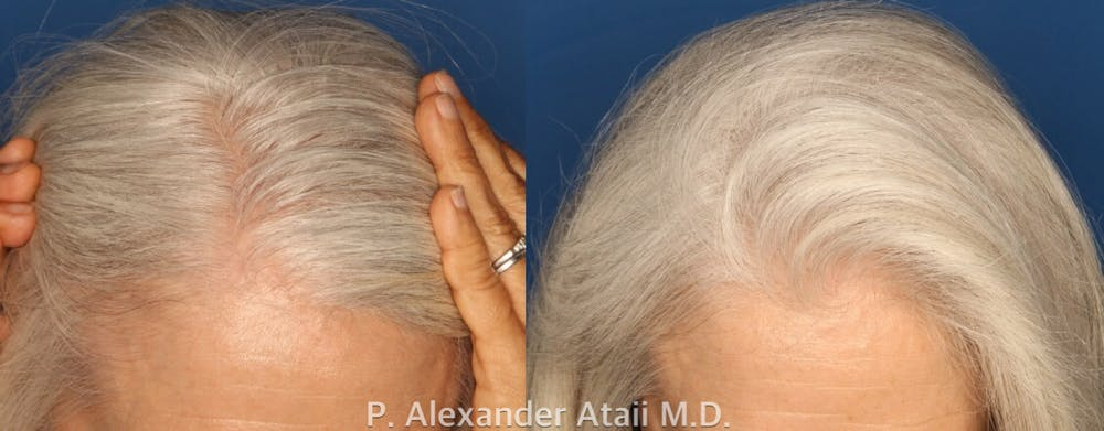 PRP Hair Loss Gallery - Patient 24560985 - Image 2