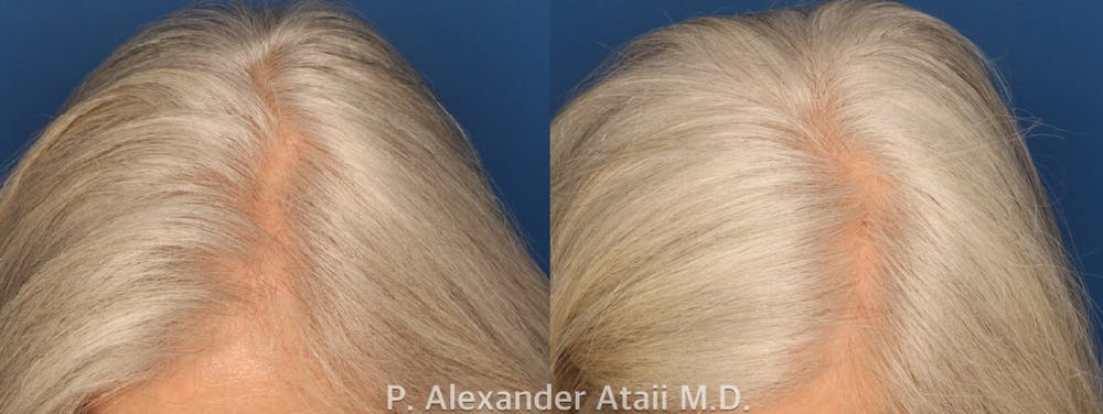 PRP Hair Loss Gallery - Patient 24560985 - Image 3
