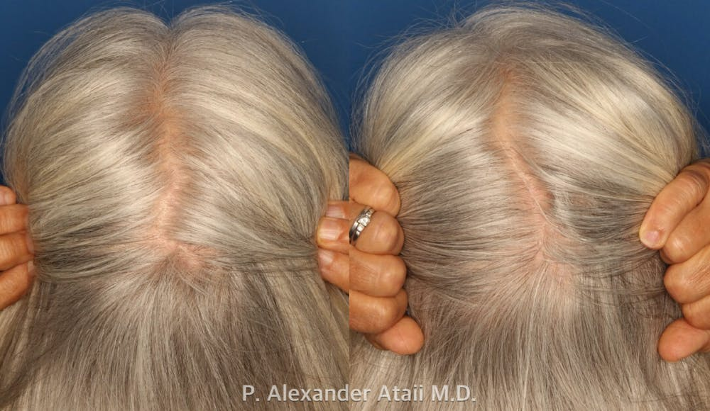 PRP Hair Loss Gallery - Patient 24560985 - Image 4