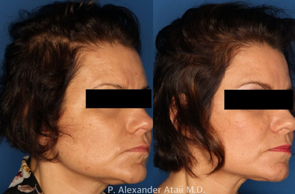 PRP Hair Loss Gallery - Patient 24560986 - Image 1