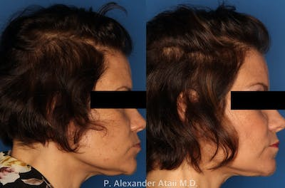 PRP Hair Loss Gallery - Patient 24560986 - Image 2