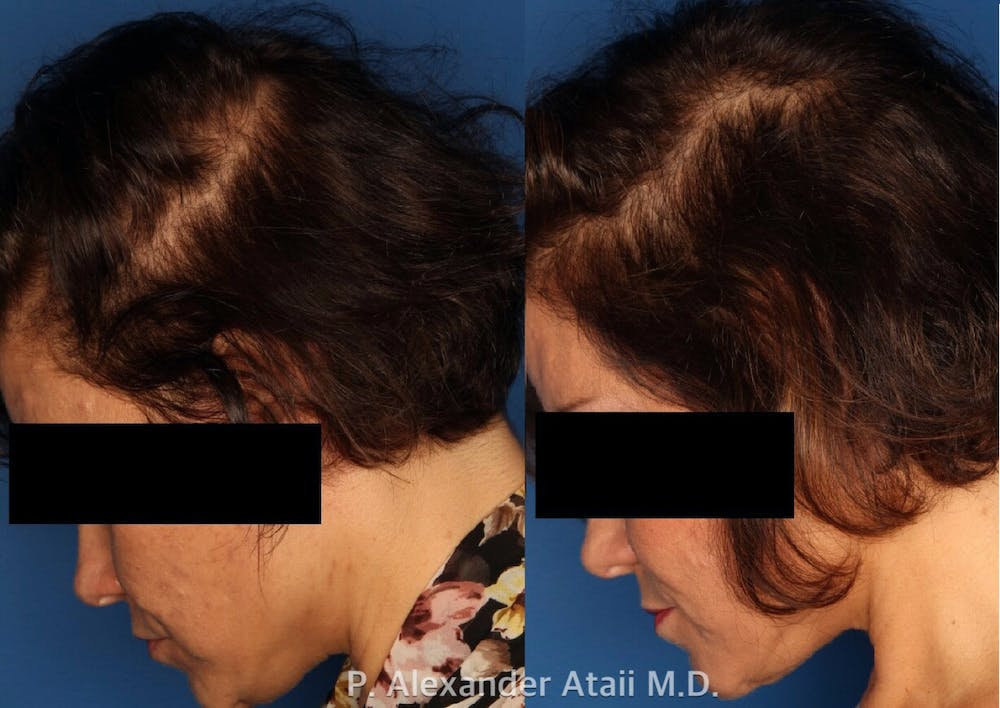 PRP Hair Loss Gallery - Patient 24560986 - Image 3