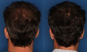 PRP for Male Hair Loss