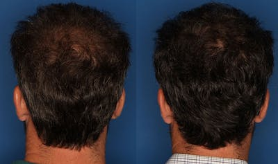 PRP Hair Loss Gallery - Patient 24560990 - Image 1