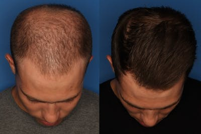PRP Hair Loss Gallery - Patient 24560991 - Image 1
