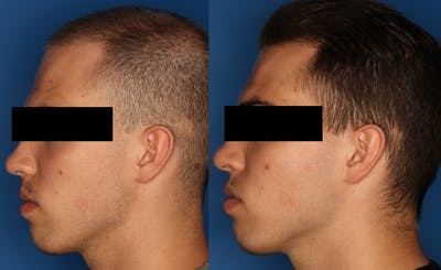 PRP Hair Loss Gallery - Patient 24560991 - Image 2