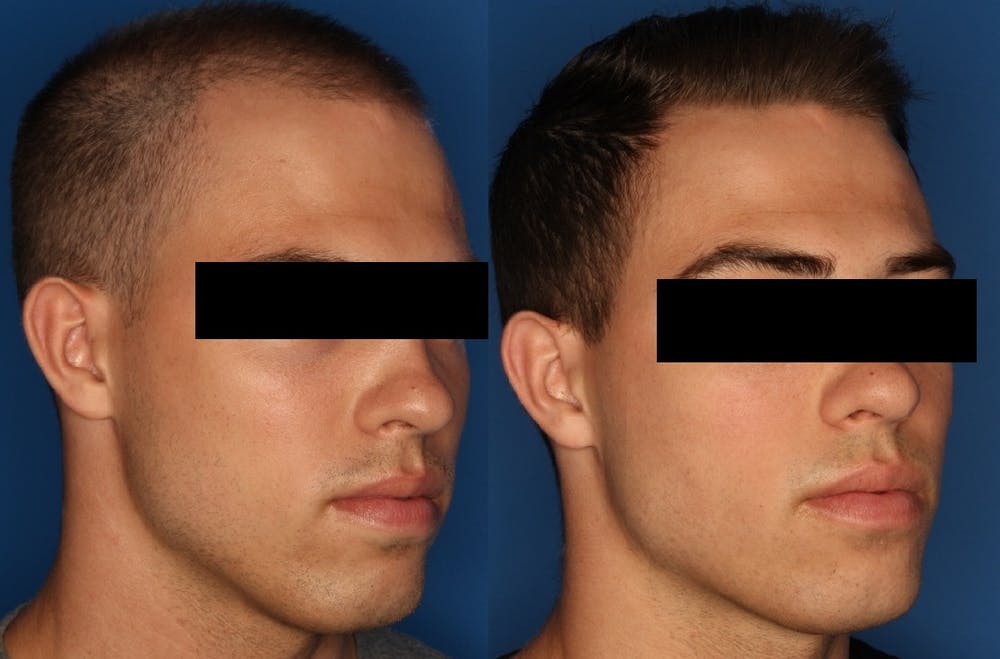 PRP Hair Loss Gallery - Patient 24560991 - Image 3