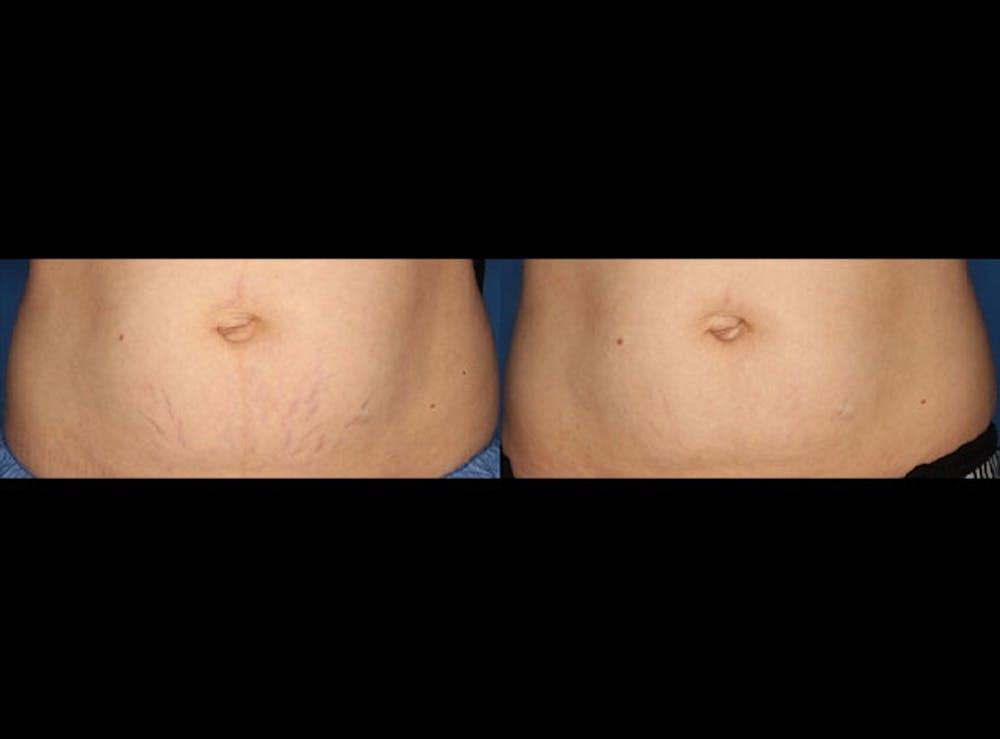 Stretch Mark Removal Gallery - Patient 24560992 - Image 1