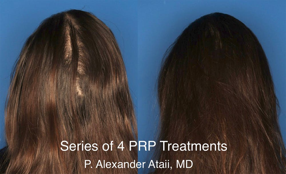PRP Hair Loss Gallery - Patient 24560993 - Image 1