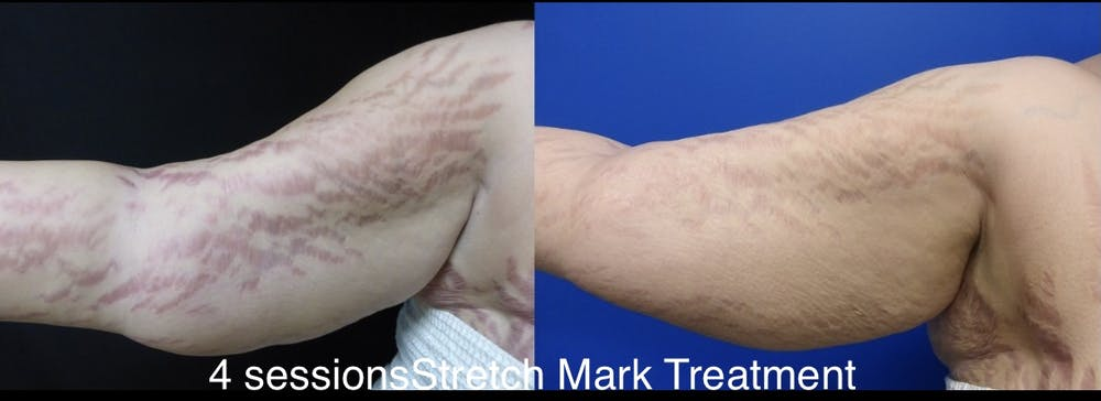 Stretch Mark Removal Gallery - Patient 24560994 - Image 1
