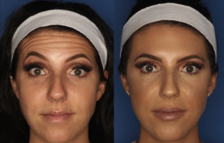Botox San Diego