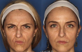 Botox Injections San Diego
