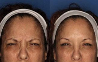San Diego Botox