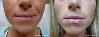 Lip Augmentation Gallery - Patient 36601654 - Image 1