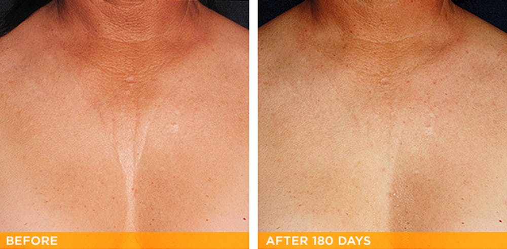 Ultherapy Gallery - Patient 36623110 - Image 1