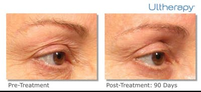 Ultherapy Gallery - Patient 36623111 - Image 1