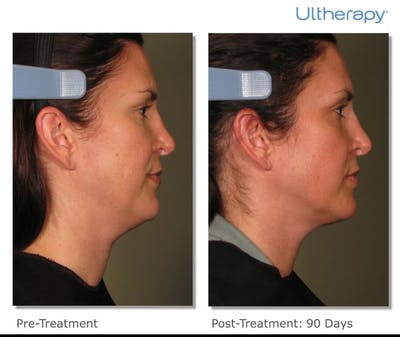 Ultherapy Gallery - Patient 36623112 - Image 1