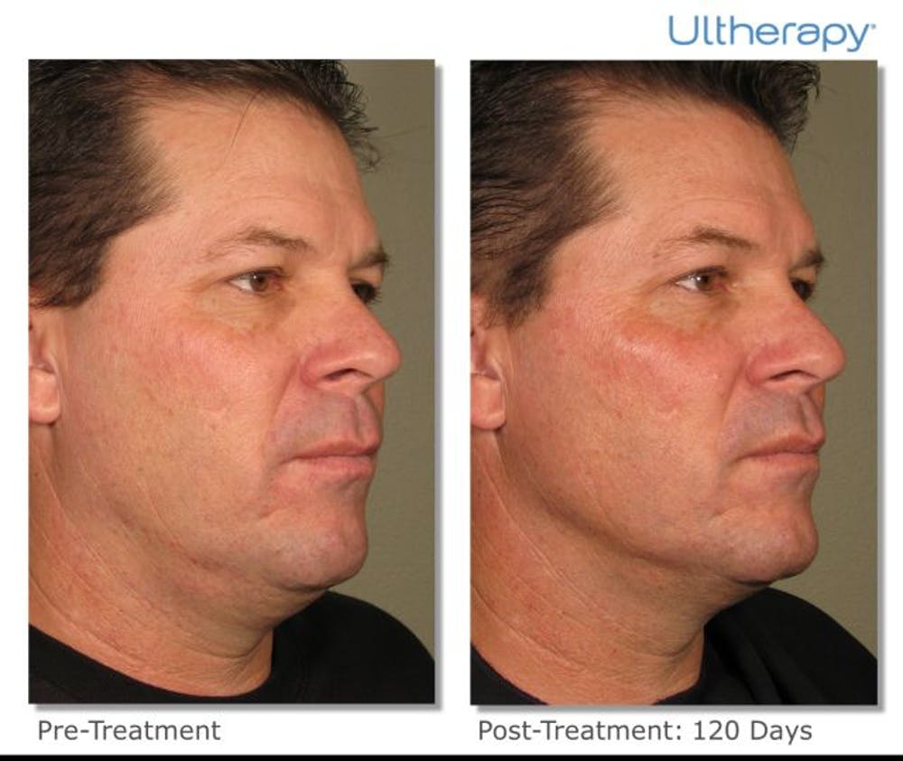 Ultherapy Gallery - Patient 36623113 - Image 1