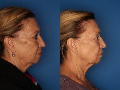 LaserFirm Gallery - Patient 41510379 - Image 2