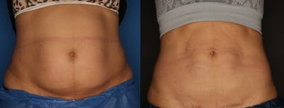 CoolSculpting Gallery - Patient 56161391 - Image 2