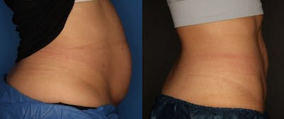 CoolSculpting Gallery - Patient 56161391 - Image 4