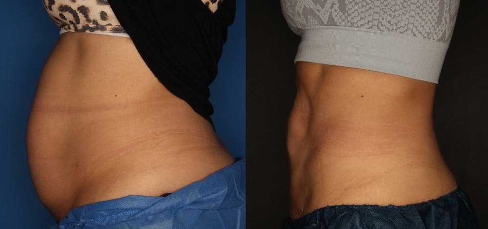 CoolSculpting Gallery - Patient 56161391 - Image 1