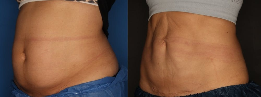 CoolSculpting Gallery - Patient 56161391 - Image 3
