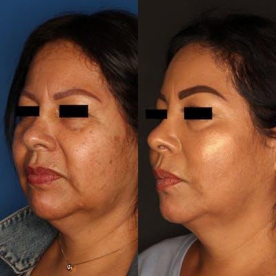Liquid Facelift Gallery - Patient 59108135 - Image 1