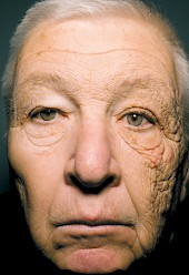 Sun damage and skin cancer are only two problems caused by excessive exposure