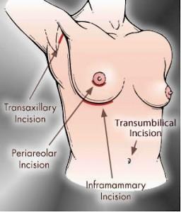 Incision diagram
