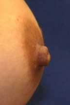 Nipple Reduction 1B