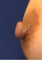 Nipple Reduction 2A