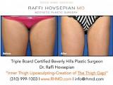Raffi Hovsepian, MD Blog | The Thigh Gap Obsession! By Plastic Surgeon Dr. Raffi Hovsepian