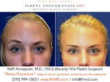 Raffi Hovsepian, MD Blog   Let's Talk BOTOX® Cosmetic!