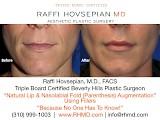 Raffi Hovsepian, MD Blog | Pucker Up (Lip Augmentation)!