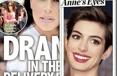 Raffi Hovsepian, MD Blog   Everyone wants Anne's Eyes