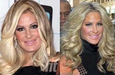 Raffi Hovsepian, MD Blog   Kim Zolciak Got Botox & A Nose Job???