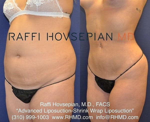 Shrink Wrap Liposuction