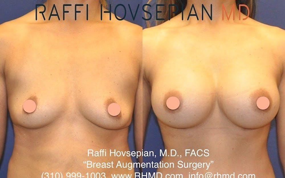 Procedures Gallery - Patient 40413563 - Image 1