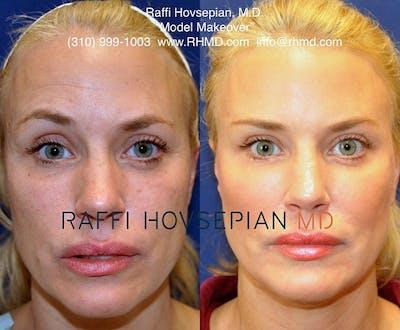 Procedures Gallery - Patient 40413566 - Image 1