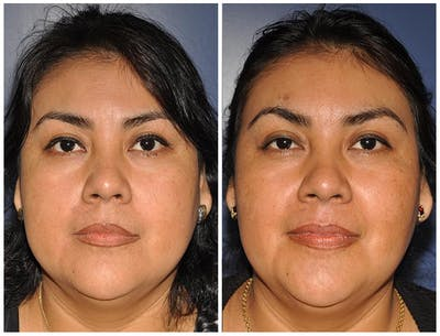 Buccal Fat Excision Gallery - Patient 30624067 - Image 1