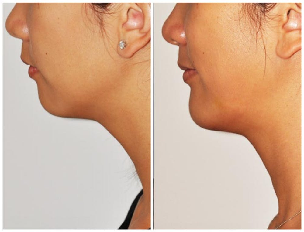 Chin Implants Gallery - Patient 30624072 - Image 1