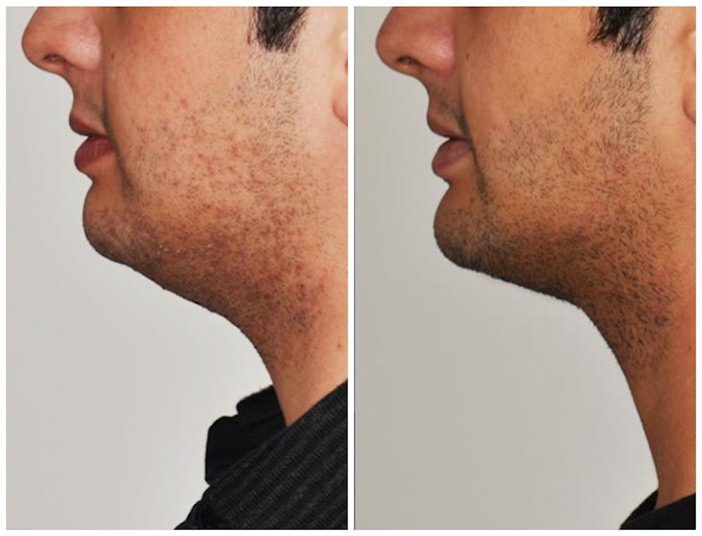 Chin Implants Gallery - Patient 30624073 - Image 1