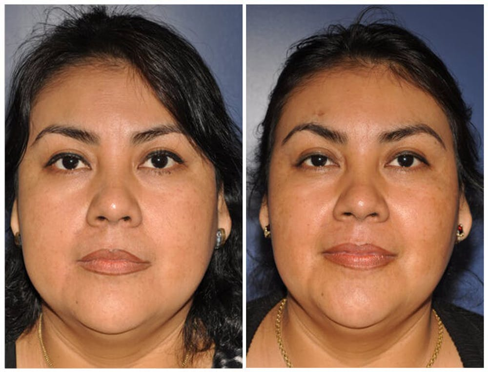 Chin Implants Gallery - Patient 30624074 - Image 1