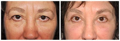 Upper Eyelids Gallery - Patient 30624080 - Image 1