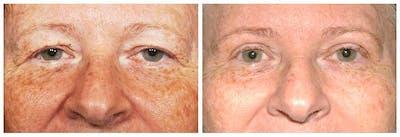 Upper Eyelids Gallery - Patient 30624081 - Image 1