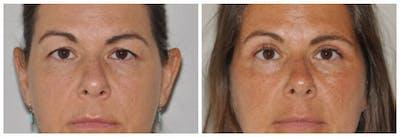 Upper Eyelids Gallery - Patient 30624082 - Image 1